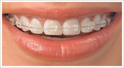 Cosmetic orthodontic
