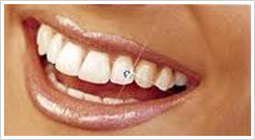 Tooth jewelery in pune